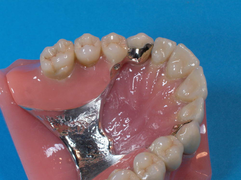 Neue Zahn-Prothesen   Zahnprothetik Hertach